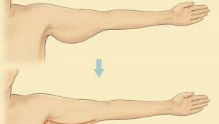 Как убрать обвисшую кожу на руках
