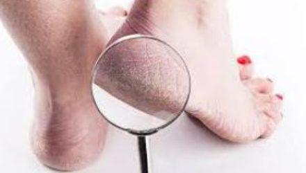 5 домашних средств от потрескавшейся кожи на пятках
