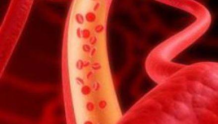 Панкреатит: особенности течения и лечения заболевания
