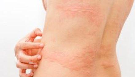 Аллергия на солнцезащитный крем: чем опасна и как предотвратить