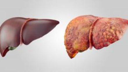 Ученые назвали соединение, спасающее печень от ожирения. Оно есть в продуктах