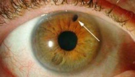 Глаукома: может ли работа за компьютером спровоцировать болезнь глаз