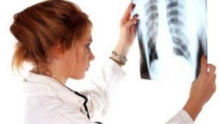 Медики нашли новый способ диагностики туберкулеза