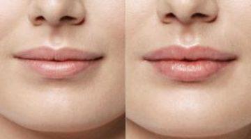 Делаем домашние средства для увеличения губ: пламперы, бальзамы и маски