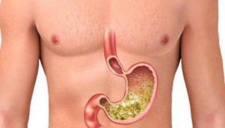 Биологи научились лечить язву гидрогелем