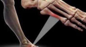 Ученые разработали цемент длязаживления костей