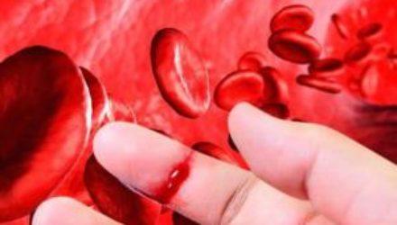 Гибридный белок снизил кровоточивость при гемофилии А