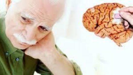 Назван предвестник болезни Альцгеймера, который можно обнаружить в молодости