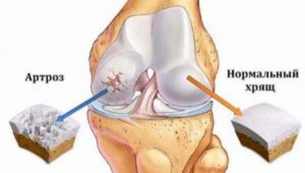 Артроз коленного сустава (гонартроз)