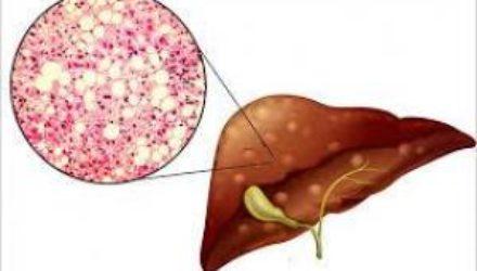 Даже легкая жировая болезнь печени связана с высоким риском смерти