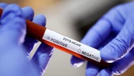 Это наш путь к свободе: Словакия начала программу массового тестирования на коронавирус