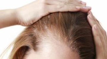 Редкий симптом коронавируса: женщина не знала, что болеет COVID-19, пока не выпали волосы