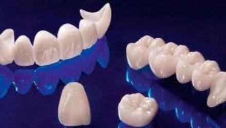 Цирконий или металлокерамика? Что выбрать, объясняет ортопед круглосуточной стоматологии «УстаДент»