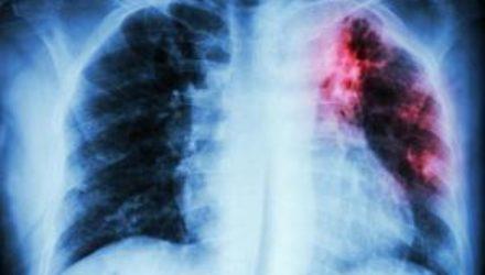 Одесса по-прежнему находится на первом месте по заболеваемости туберкулезом